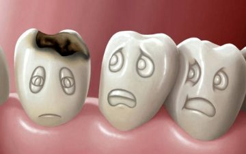 Зубной кариес. Понятие, специфика, лечение